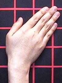 不自然な手